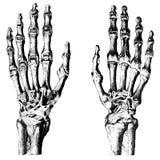 医学-骨头在人的手上 免版税库存图片