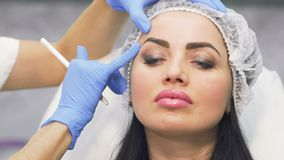 医生在botox射入前标记面部区域 影视素材