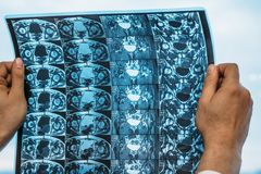 医生拿着MRI扫描或堆联接X光片  库存图片