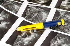 医疗超声波、诊断超生波检查法或者超生波检查法照片射击foliculometry在ivf节目的协议 免版税库存图片