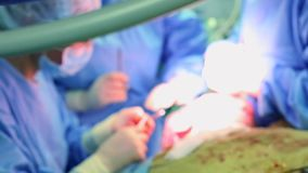 医院手术室 专业外科医生和护士,在成功以后的缝合创伤一个不同的队  股票录像