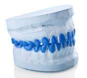 单独做盘子的膏药牙齿模子 库存照片