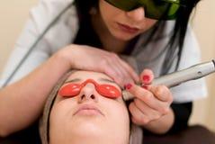 去除面部皮肤缺点的激光治疗 库存图片