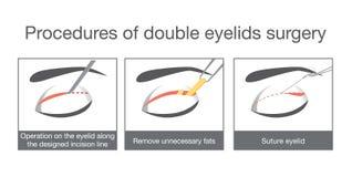 双重眼皮手术做法  库存例证