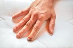 受伤的和被缝的手指 库存照片