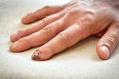受伤的和被缝的手指 免版税库存图片