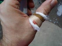 受伤的拇指 库存图片