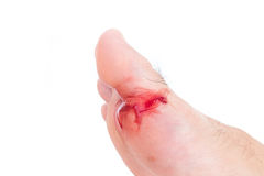 受伤的脚、新鲜的创伤和血液从残破的玻璃,白色bac 库存图片