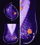 变形的乳腺癌,早期胸部肿瘤X射线测定法 库存图片
