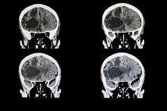 变形的脑瘤 免版税库存照片