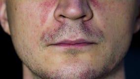 口周的皮炎-在面孔的癞 库存照片