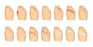 各种各样的脚损伤 免版税库存照片