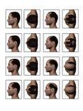 后退成为秃头的细线 库存照片