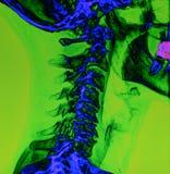 后面和脊椎X-射线 免版税图库摄影