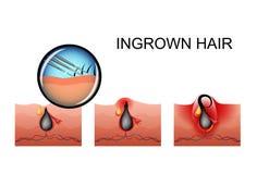 向内生长头发,成熟的丘疹 库存例证
