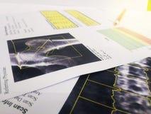 听诊器、膝反射和脊椎模型的关闭在骨头密度报告投入了 太软和模糊的图象 库存照片