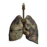 吸烟者的肺 免版税库存照片