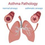 哮喘病理学 免版税库存照片