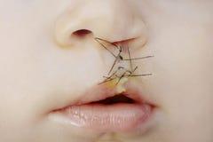 嘴唇和上颚在手术以后劈开了 免版税库存照片