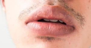 嘴唇特写镜头供以人员问题医疗保健,单纯疱疹 库存照片