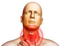 喉咙痛 免版税库存照片