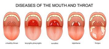喉头的疾病 免版税库存图片