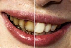 嘴微笑的女孩的区别肮脏和干净的牙 免版税库存照片