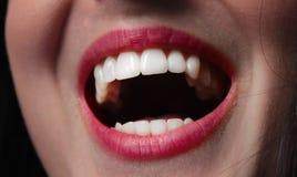 嘴微笑的牙妇女 库存照片