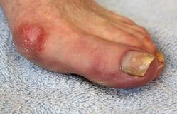 囊炎和趾甲真菌 免版税图库摄影