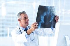回顾X-射线的男性医生在医院 免版税图库摄影