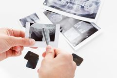 图片病的牙,胶 免版税库存照片