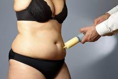 圆润的妇女皮下脂肪切除术腹部注射器 免版税库存图片
