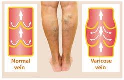 在一条女性资深腿的静脉曲张 免版税库存照片