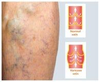 在一条女性资深腿的静脉曲张 免版税库存图片