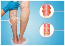 在一条女性资深腿的静脉曲张 库存图片