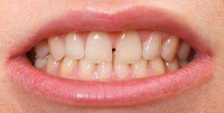 在上面的门牙之间的齿隙 免版税图库摄影