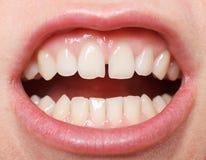 在上面的门牙之间的齿隙 免版税库存图片