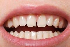 在上面的门牙之间的齿隙 免版税库存照片