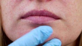 在下巴的丘疹 问题皮肤 在面孔的粉刺 由医生的考试 影视素材