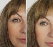 在举的结果整容术疗法前后,面对妇女皱痕 库存照片