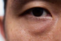 在亚洲男性油性皮肤类型的下垂症颓丧的眼皮与黑眼圈袋子 免版税图库摄影