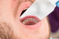 在人的下颌的特写镜头保留 畸齿矫正术,与镜子的摄影 免版税图库摄影