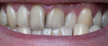 在人的牙的牙菌斑由咖啡残余导致 免版税库存图片