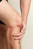 在人的膝盖的创伤 免版税库存图片
