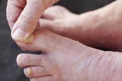 在人的足癣干性皮肤 免版税图库摄影