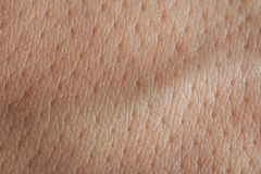 在人皮肤的毛孔 库存照片