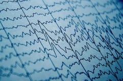 在人脑,在脑电图的脑波样式,在脑子的电子活动的问题的EEG波浪 免版税库存图片