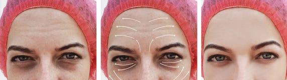 在作用区别整容术疗法更正,箭头前后,妇女皱痕面对 免版税库存照片