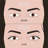 在例证前后的双重双眼皮手术 库存例证