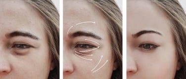 在做法前后的妇女皱痕圆鼓的作用面孔,更正 免版税图库摄影